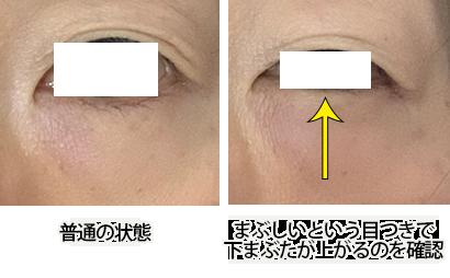 眼輪筋エクササイズやり方写真1
