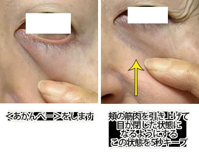 眼輪筋トレーニングやり方写真5