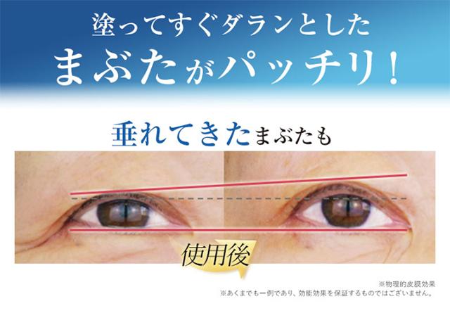 リッドキララは眼瞼下垂にも効果があるか?のイメージ写真