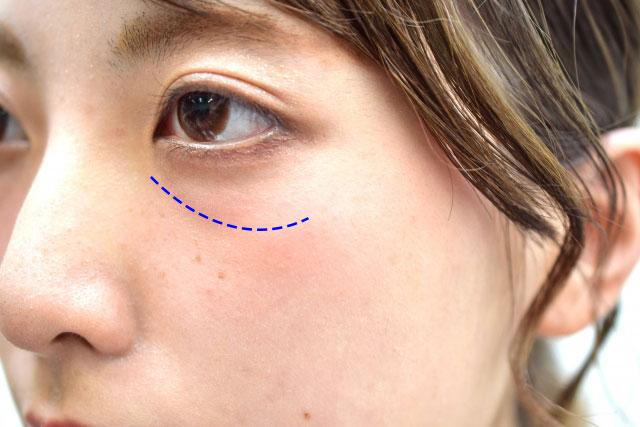 目の下のくぼみの原因のイメージ写真2
