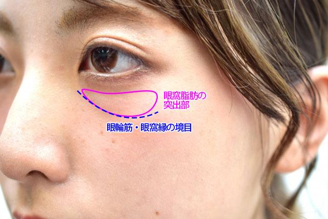 目の下のくぼみの原因のイメージ写真3