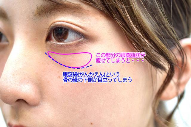 目の下のくぼみの原因のイメージ写真4
