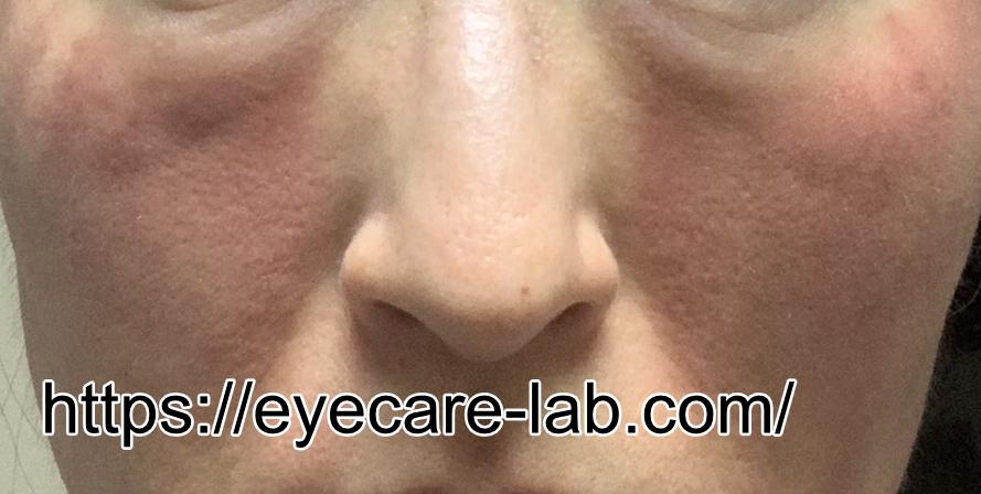 トリアレーザー美顔器ダウンタイムの写真